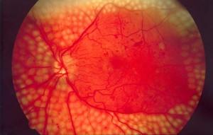 Retina com tratamento Laser