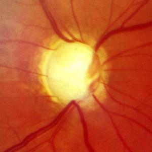 Nervo óptico glaucomatoso