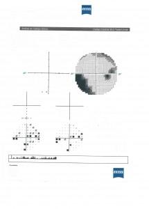 Perimetria Estática Computorizada