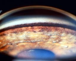 Como se distingue o Glaucoma de Ângulo Aberto do Glaucoma de Ângulo fechado ?