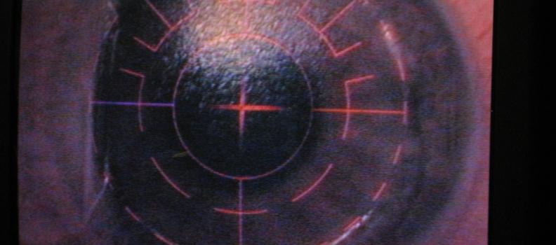 Correcção refractiva por Laser Excimer