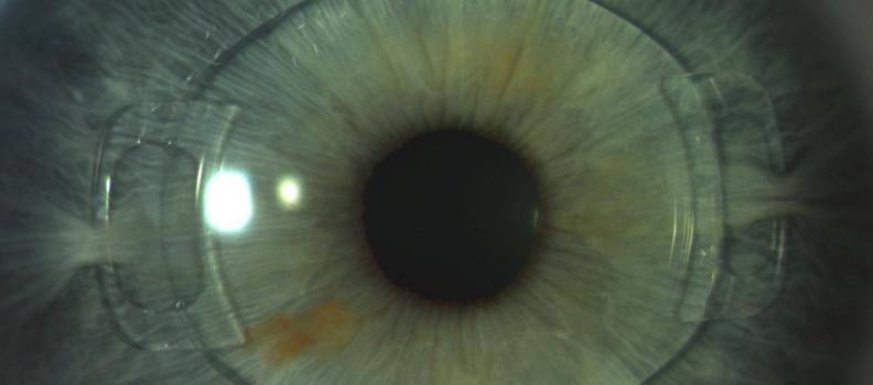 Implante de lente em olho Fáquico
