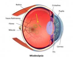 Miodesópsia – Mosca volante